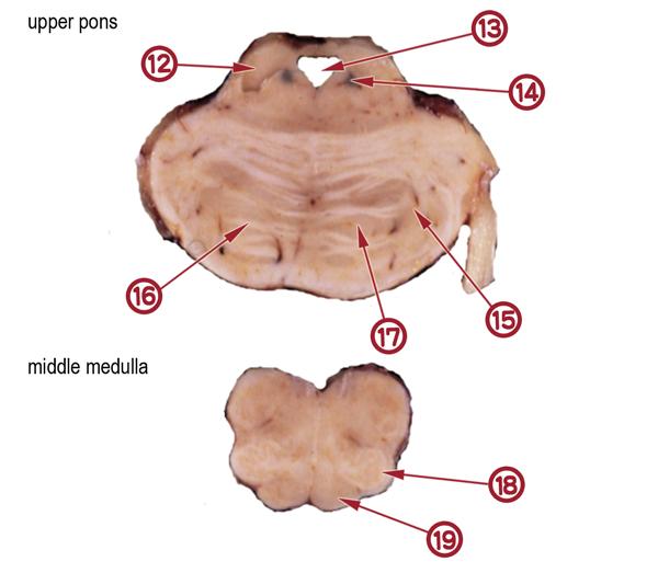 Normal Gross Anatomy(Quiz version)